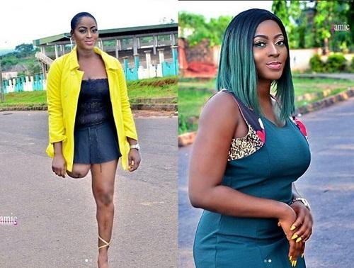 Heart Melting Photos of Pretty Nigerian Amputee Actress, Doris Akonanya As She Celebrates Her Birthday