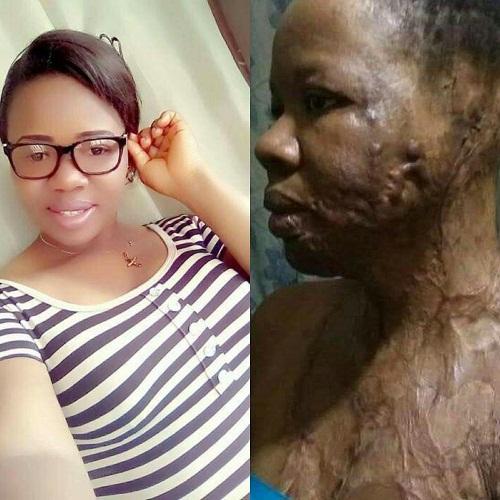 UNIZIK Graduate, Nkiruka Jane Nnaji, Bathed With Acid By An Unknown Man [photos]
