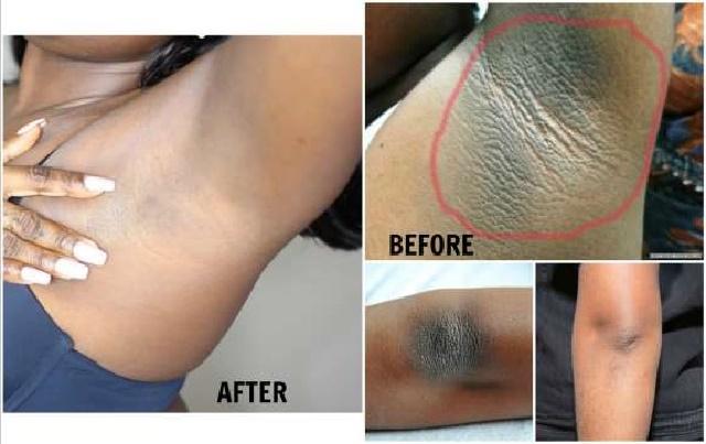 3 Simple Natural Ways to Lighten Your Underarm [Armpit]